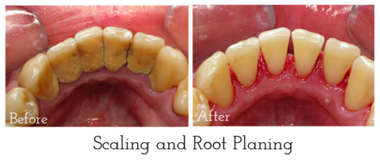 Best Dental Clinic In Shillong For Scaling Pearl E Whites